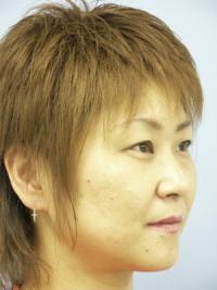 biyokugaisoku10go21