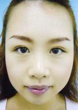 eye106