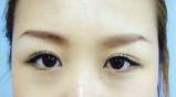eye108