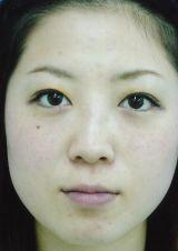 eye203