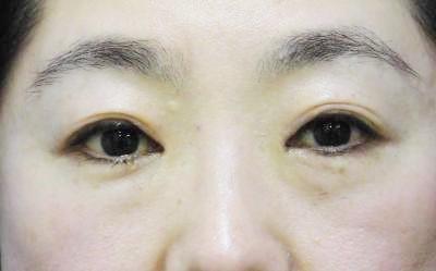 眼瞼下垂経結膜法術後写真