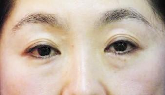 眼瞼下垂経結膜法