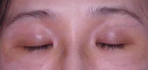 ポセンシア埋没式眼瞼下垂術前