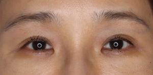 ポセンシア埋没式眼瞼下垂