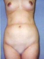 waist01