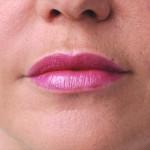 唇のヒアルロン酸注入1術後