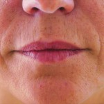 唇のヒアルロン酸注入1術前
