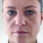 頬前方のヒアルロン酸術前