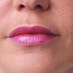 唇のヒアルロン酸注入2術後
