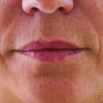 唇のヒアルロン酸注入2術前