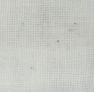 埋没法の抜糸