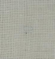 埋没法の抜糸の糸